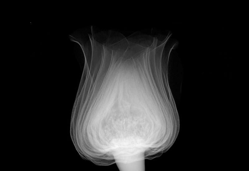 xray art tulip